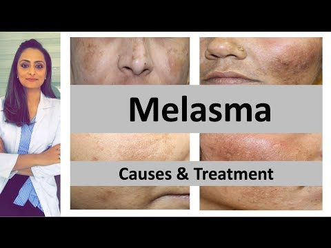 How To Treat Dark Spots | Melasma | Causes & Treatment | Dermatologist | Dr. Aanchal Panth
