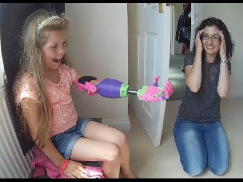 wonderful little girl receives mechanical arm: here is the reaction