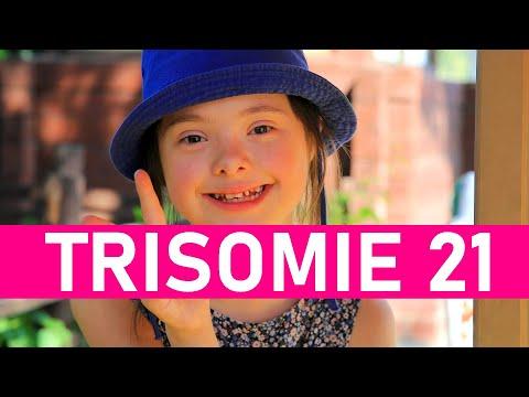 Watch videoKünstler mit Down-Syndrom
