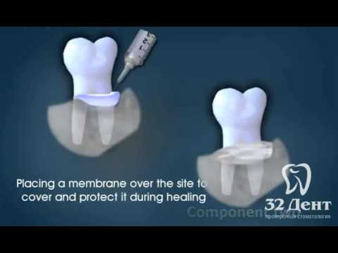 Восстановление костей при лечении пародонтита.