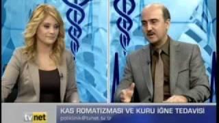Kas romatizması ve kuru iğne tedavisi - Dr. serdar SARAÇ - TVnet Poliklinik Bölüm 3