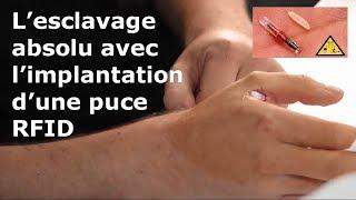 Video L'esclavage absolu avec l'implantation d'une puce RFID MP3, 3GP, MP4, WEBM, AVI, FLV Juni 2017