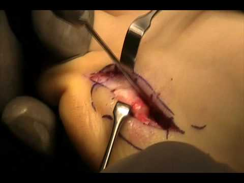 Tailors Bunion Surgery | MYFOOTSHOP.COM