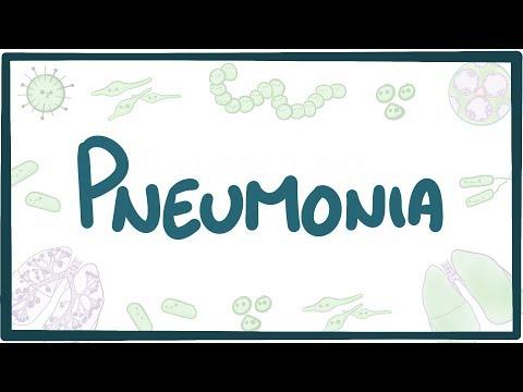 Pneumonia - causes, symptoms, diagnosis, treatment, pathology