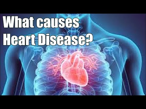 Do Cholesterol and Fat Cause Heart Disease?