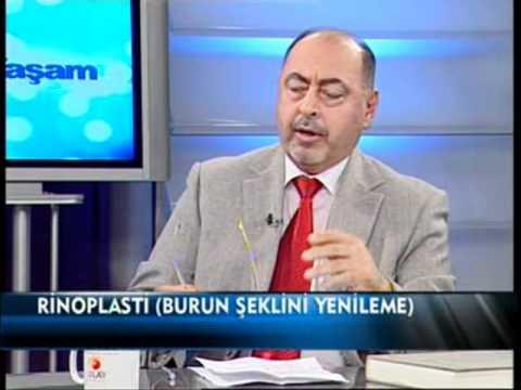 4 - Dr. FERRUH FERSÇİ - RHİNOPLASTİ - BURUN ESTETİĞİ