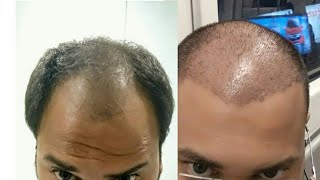 Video Before and After Hair transplant | Hairtransplant journey day 1 to day 20 | Hair Transplant in Delhi MP3, 3GP, MP4, WEBM, AVI, FLV Februari 2019
