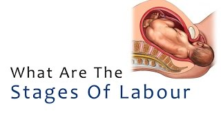 www.induswomen.com What are the Stages of Labour Recognizing the signs of real labor can help you when is the right time to go to the hospital and learning ...