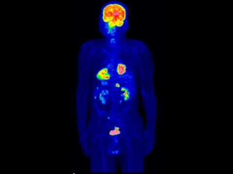 Первичный множественный рак (ПЭТ-КТ)