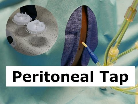 How to Do a Peritoneal Tap to Drain Ascites Fluid