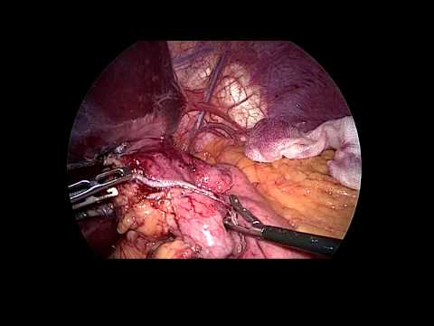 Laparoscopic Revision of Gastric Banding to Bypass