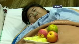 Video Berat Badan Gadis Pasien Obesitas Naik Lagi Menjadi 129 Kg MP3, 3GP, MP4, WEBM, AVI, FLV Juli 2019