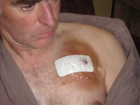 Implantable Cardioverter Defibrillator - Heart Condition ARVC/D