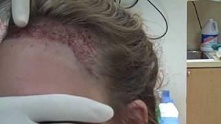 Video Plastic surgery by Dr. Jeffrey S. Epstein - Female Hairline Advancement Procedure MP3, 3GP, MP4, WEBM, AVI, FLV September 2018