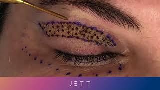 Video Jett Plasma - Blefaroplastia MP3, 3GP, MP4, WEBM, AVI, FLV Februari 2019
