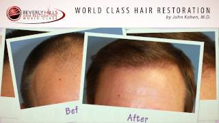 Hair Surgery Results Video by John Kahen MD/ Beverly Hills Hair Restoration Clinic