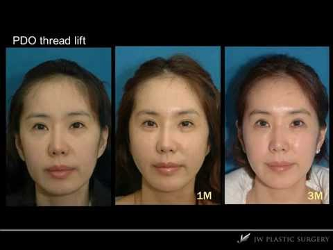 [JW Plastic Surgery Korea] Nose Filler and PDO Thread Lift Before&After Photo