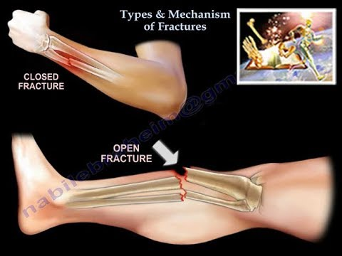 Types & Mechanism Of Fractures  - Everything You Need To Know - Dr. Nabil Ebraheim