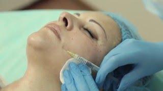 Биоревитализация кожи лица в клинике Gold Laser