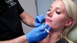 Video Filler to Define the Jawline and Correct a Recessed Jawline MP3, 3GP, MP4, WEBM, AVI, FLV Desember 2018