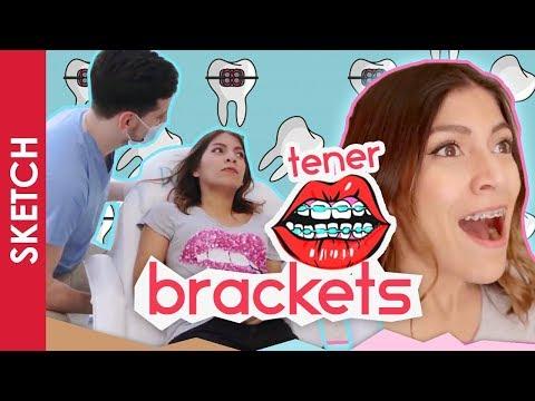 CUANDO TIENES BRACKETS / FRENOS - Katia Nabil (видео)