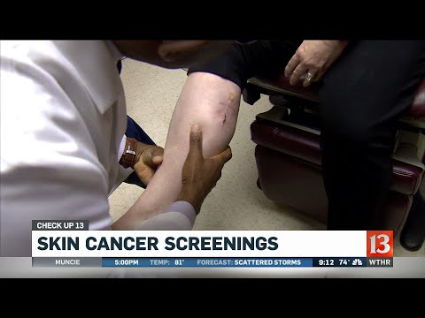 Check Up 13: Melanoma is deadliest form of cancer (9AM)