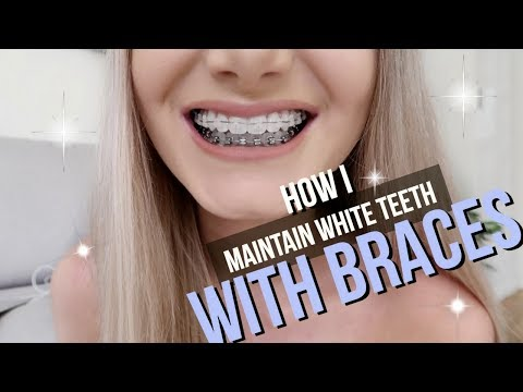 How I Keep My Teeth White With Braces