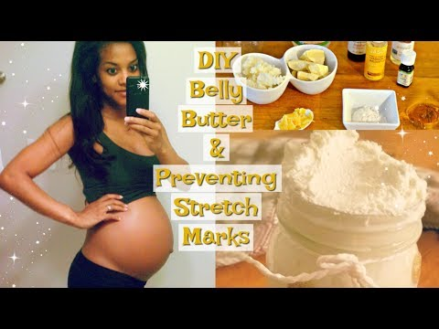 How To Make Belly Butter PLUS Tips For Preventing Stretch Marks During Pregnancy