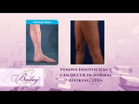 Bailey Cosmetic Surgery and Vein Centre' Treats Venous Insufficiency Springfield & Lake Ozark