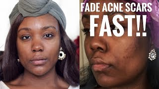 "I'VE FINALLY GOT rid of my acne / acne scars at home. BYE DARK SPOTS & HYPERPIGMENTATION. It feels so good to say that. THIS video will help you tons + my skincare routine: https://www.youtube.com/watch?v=Dv-QNo91vz0SUBSCRIBE TO MY CHANNEL FOR MORE VIDEOS: http://bit.ly/1RDpkFtSUBSCRIBEWhen I'm not on here, I'm here:)http://www.roselkimberly.com/http://instagram.com/roselkimberlyhttps://twitter.com/RoseLKimberlySnapchat- roseyrosechickTOP 3 PLAYLISTSHOW TO VIDEO'S Black Woman: https://www.youtube.com/watch?v=A7kmk...Makeup Tutorials:https://www.youtube.com/watch?v=UbENJ...Drugstore Reviewshttps://www.youtube.com/watch?v=sgnBc...♥ ♥♥ ♥♥ ♥♥ ♥♥ ♥♥ ♥♥not sponsored AT ALLL!!!.Camera: Nikon d5100Editing: Final Cut Pro 10For any business inquiries please use the email below with the subject ""Rose Kimberly"": business@beaufreshmedia.comR O S E K I M B E R L Y NEW video every Sunday 10:00pm EST/07:00pm PST! I'm a 22 NYC girl who Graduated with my bachelor's in Cosmetics Chemistry and Marketing. I studied makeup, hair, nail, skincare + MORE. I love Jesus and people! Welcome ,Subscribe & Let's be friends!FULL MAKEUP LOOK COMINGADVANCED CLINICAL TEA TREE OIL :"