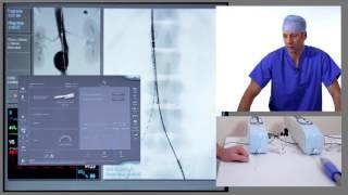 Video EVAR (Endovascular Aneurysm Repair) MP3, 3GP, MP4, WEBM, AVI, FLV Juli 2018