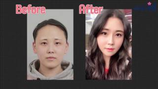 Video Korean girl undergoing v line surgery, cheekbone reduction, and hairline surgery! MP3, 3GP, MP4, WEBM, AVI, FLV Juli 2018