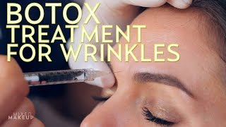 My First Botox Injections | The SASS with Sharzad and Susan - YouTube
