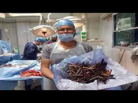 Woman Suffers Severe Abdominal Pain, This Is What Doctors Found Inside Her Stomach!