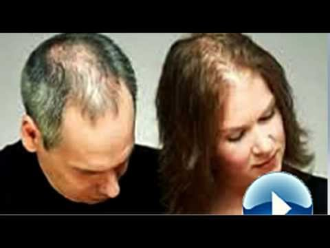 Hair Loss- How to stop Hair Loss and Regrow Hair Naturally