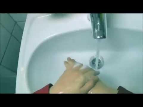 Obsessive Compulsive Hand Washing