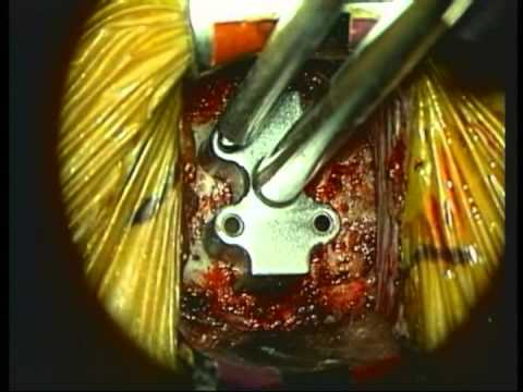 Joint Reconstruction With A Prestige Type Disc