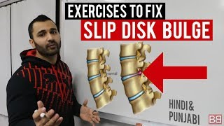 When it comes to Back Injuries, Disc Bulge or Slip Disc are very common.In this video we talked about what are few measures and exercises we can adopt to help reduce pain with DISC BULGE.Make sure to CONSULT WITH YOUR DOCTOR before starting any exercise!These are very simple and easy exercises that you can do anywhere, by yourself and even at Home. Duration of the exercises is about 1 minute. This can be used as a great treatment as well as prevention. It is mainly meant to target your lower back, whether it is a slip disc, disc Bulge, herniated disc or disc problem causing you sciatica pain caused by nerve pinch or otherwise. It will help you get that slip disc or bulge back into its place. Make sure to press the notification button and give it THUMBS UP if you like the video. Make sure to  COMMENT  LIKE  SHARE If you are feeling SORE and it isn't a disc slip then watch this soreness video.https://youtu.be/RFiJc6iqSt4***Find 100's of videos in our Playlists!***Visit our website: http://www.mybollywoodbody.comhttps://www.facebook.com/mybollywoodbodyhttps://www.twitter.com/mybollywoodbodyhttps://instagram.com/mybollywoodbodyIf you have questions, message us on our Facebook page