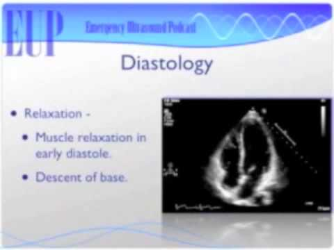 Ultrasound Podcast – DIASTOLOGY ULTRASOUND — PART 1