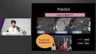 2018년 서울아산병원 암병원 심포지엄 : Imaging Diagnosis of Colorectal Cancer Liver Metastasis: Pearls and Pitfalls 미리보기