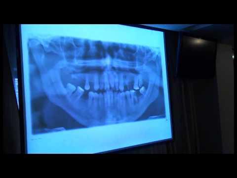 Обоснование применения конусно-лучевой компьютерной томографии в диагностике заболеваний пародонта