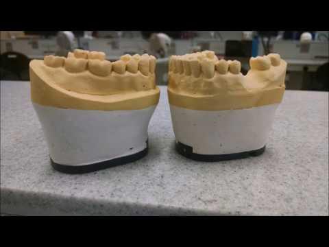 Mounting Dental Models (видео)