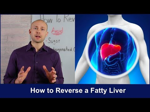 How To Reverse A Fatty Liver | Untold Secrets