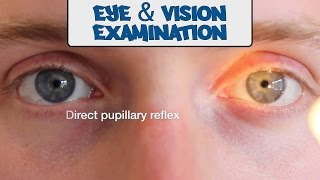 Examination of the Eye&Vision - OSCE Guide