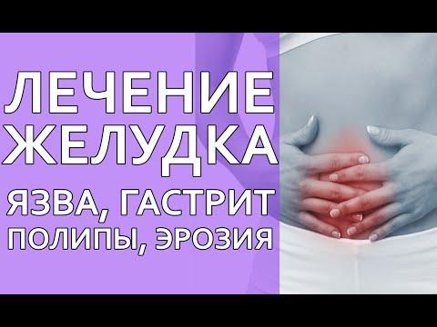 Лечение желудка. Язва. Гастрит. Полипы. Эрозия. Сибирское здоровье лечение желудка!