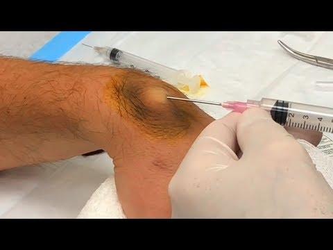 Ganglion Cyst Drained with BIG Needle - Neck Surgery Update