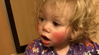 Video Meet 1-Year-Old Who's Allergic to Tears MP3, 3GP, MP4, WEBM, AVI, FLV Juli 2018