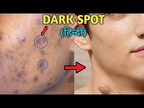 How To Remove DARK SPOTS From Face Naturally | ACNE SCARS, BLACK SPOTS, ACNE MARKS | Style Saiyan