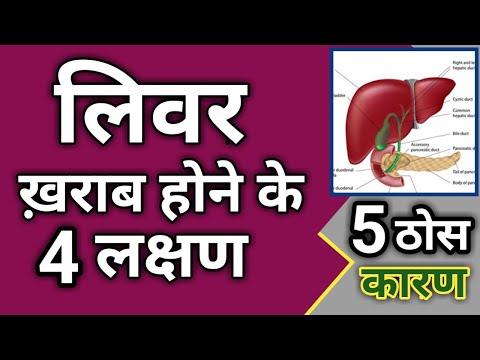 लिवर खराब होने के लक्षण   Liver Symptoms   Cirrhosis of liver   liver kharab hone ke lakshan
