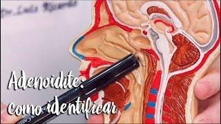 Adenoidite: como identificar